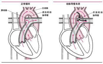 小儿动脉导管未闭该怎么办