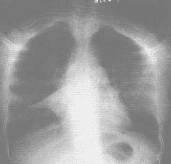表弟得了新生儿肺不张怎么办