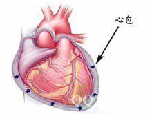 外公患了心肌梗死后心包炎怎么办