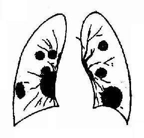 急性呼吸窘迫综合征该怎么治疗