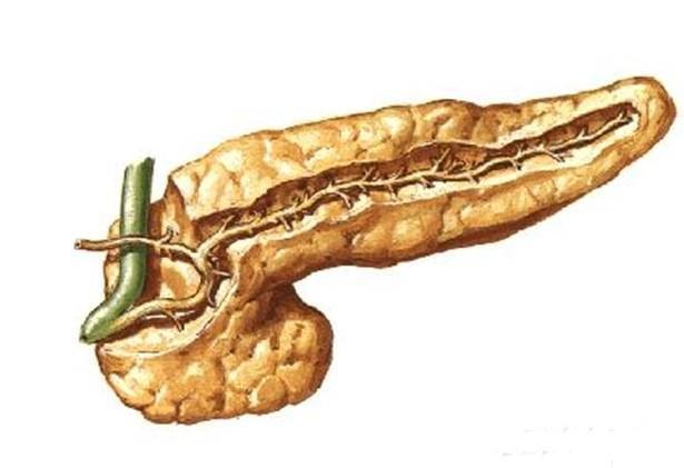 胰腺 分裂/胰腺分裂怎么办