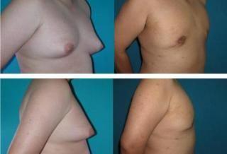 如何治疗男性乳房肥大症