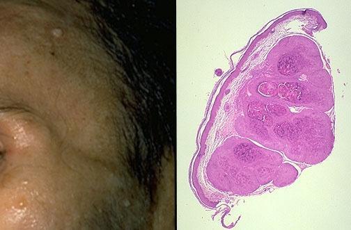 如何治疗涎腺混合瘤