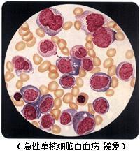 单核细胞白血病该怎么办