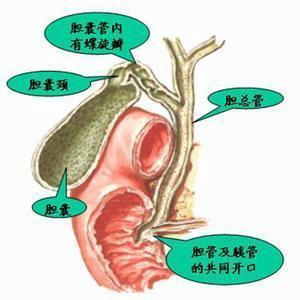 如何护理先天性肝内胆管囊状扩张症