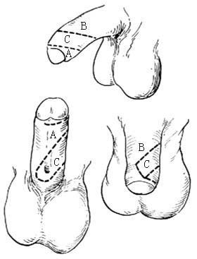 该如何治疗尿道下裂