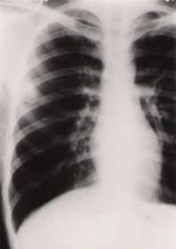 肺隐球菌病该如何治疗