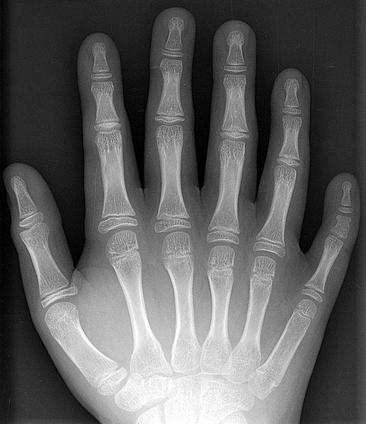 孩子先天性手指畸形怎么办