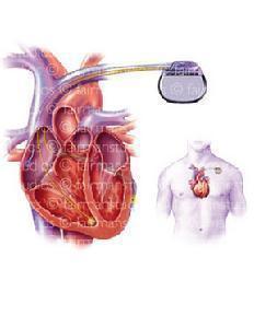 心动过速性心肌病怎么办