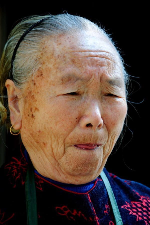 怎么预防老年人甲状腺功能减退