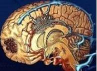 得了小儿脑血管畸形怎么办