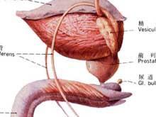 如何预防男性尿道癌