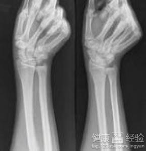 腕舟状骨骨折怎么办