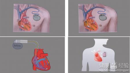 如何进行心脏起搏器植入术的术后护理