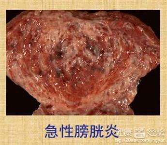 急性膀胱炎的治疗; 膀胱炎图片;