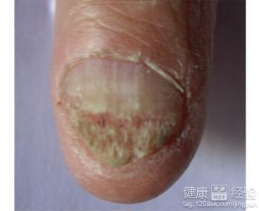怎么预防灰指甲