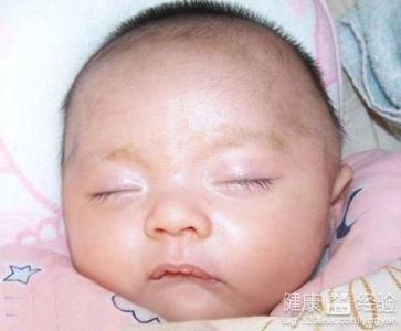 5个月宝宝眼睛有白眼屎是怎么回事