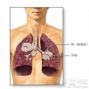 肺癌晚期有什么症状_肺癌晚期症状有哪些?
