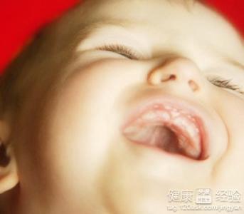 小儿口腔炎如何预防?