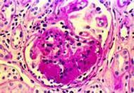 关于原发性肾病综合征