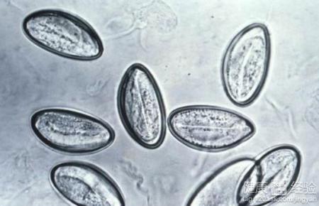不可以忽视的寄生虫 治疗恙虫病