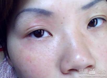 皮膚上的螨蟲怎么治療方法