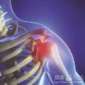 关于肩关节周围炎