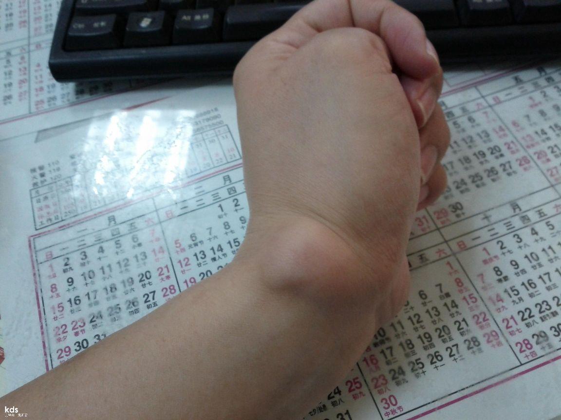 腱鞘炎是手腕处关节的图片