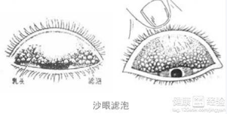 儿童沙眼有什么症状图片