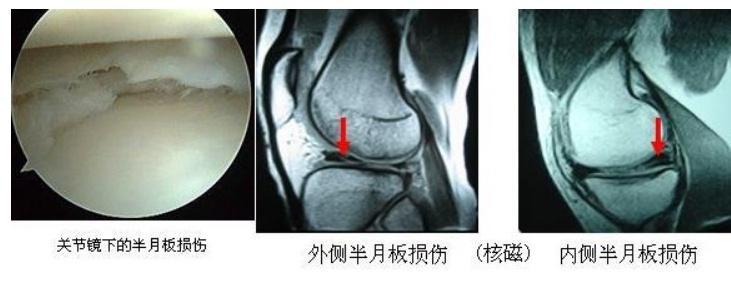 膝关节半月板一度损伤,怎么样才能尽快恢复