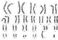 不孕不育,男性染色体移位怎么办