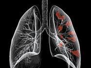 肺癌引发大量胸水如何治疗呢