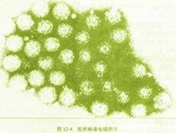 腺病毒性肠炎怎么办?