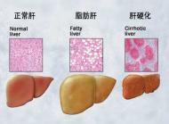 肝硬化伴脾肿大胆囊炎怎么办呢