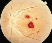 高血压引起的眼底出血应该怎么治疗