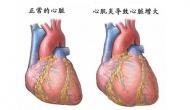 病毒性心肌炎后遗症引起心悸有什么特效药