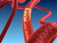怎么确诊是不是高胆固醇血症