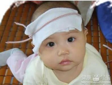 宝宝摔到额头后发烧了