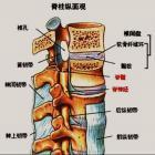 颈椎病急发时要怎么办