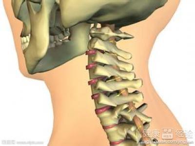 颈椎间盘突出的治疗方法有哪些