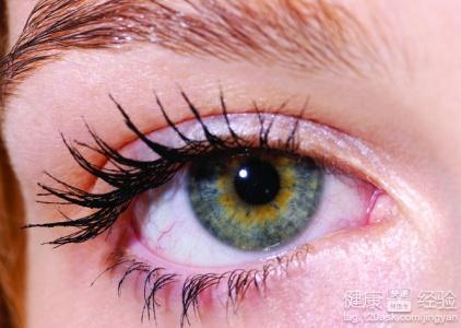 眼睛经常流泪是什么原因