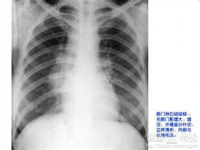 三岁半患了肺门淋巴结核要怎么治疗呢
