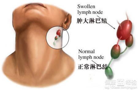 淋巴炎和淋巴结核的症状都是什么样的呢
