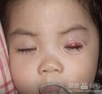 耳前淋巴结肿大-眼睛长针眼怎么办