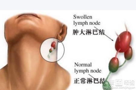 脖子上长淋巴结核要怎么治疗呢