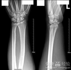 右手腕舟状骨和桡骨骨折4个多月不愈合怎么办