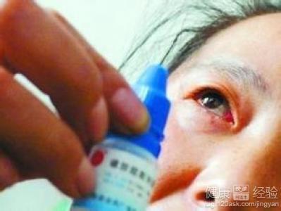 急性结膜炎也就是红眼病怎么治好