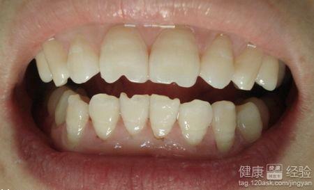牙齿磨损怎么办