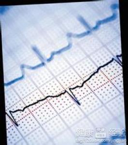 心电图窦性心律不齐是什么