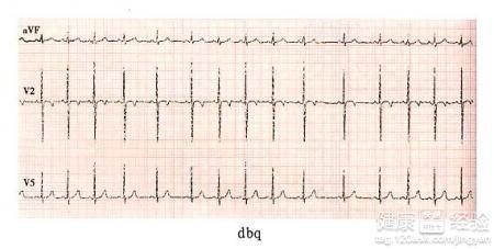 心电图提示窦性心律不齐怎么治疗啊